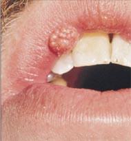 Son Yılların En Tehlikeli Virüsü : HPV !