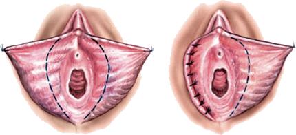Labioplasti (İç Dudak Düzeltilmesi)