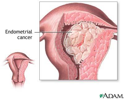 Rahim (Endometrium) Kanseri
